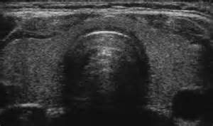echogenic nodule thyroid picture 13