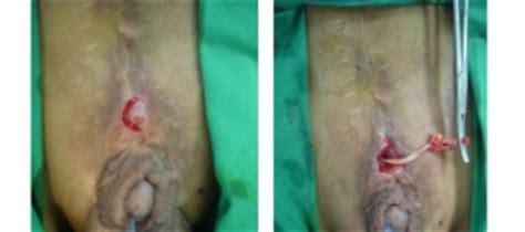 birth defect bladder exstrophy picture 11