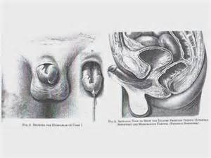 hypospadias bladder picture 21