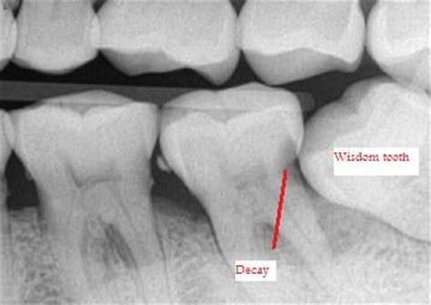 cavities in wisdom teeth picture 18