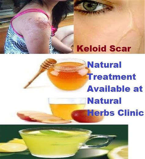 keloid herbal treatment picture 9