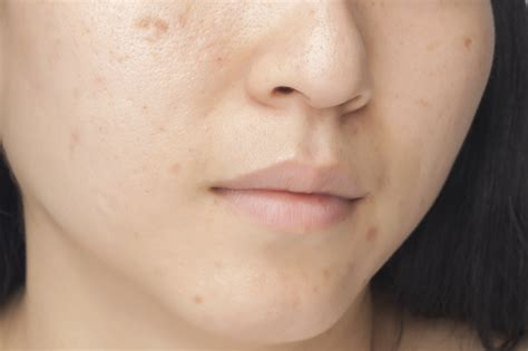 Home remedies for acne scarring picture 2
