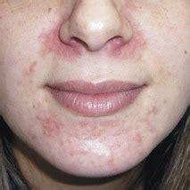 face skin rash picture 17