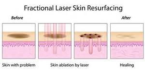 laser skin resurfacing kaiserslautern picture 5