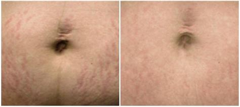 fraxel stretch mark removal photos picture 9
