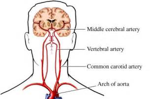 blood flow to the brain picture 10