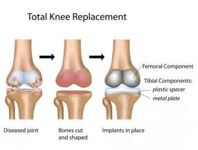 knee pain relief picture 6