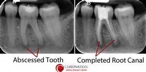 broken roots on teeth picture 13