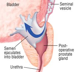 can you ejaculate by prostate rubbing picture 2