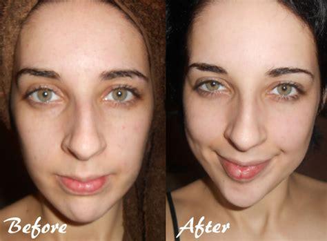 vlack dermatologist for black skin picture 6