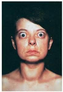thyroid hot nodules optic nerve damage picture 9