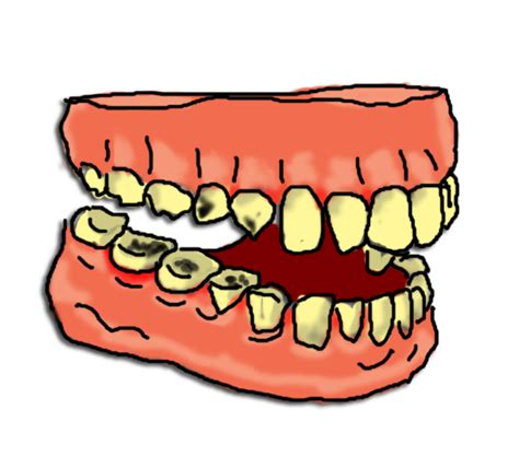 cavaties teeth picture 14