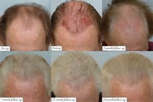 hair loss after hyperparathyroid surgery picture 1
