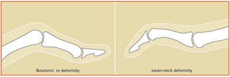 causes of hand and joint pain picture 10