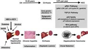 full cirrhosis of the liver picture 7
