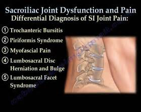 joint pain maryland picture 5