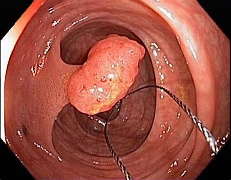 small colon polyp picture 1