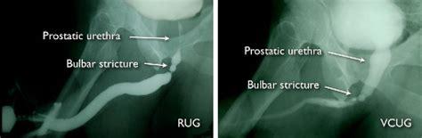 can surgery fix retorgrade ejaulation picture 11