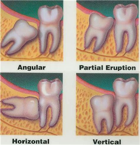 do your teeth change position picture 7