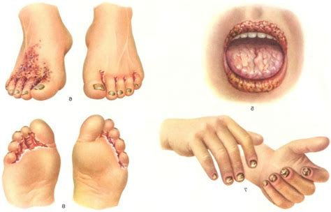 yeast infection signs picture 1