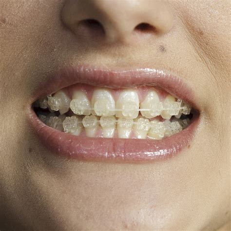 clear teeth brace picture 19