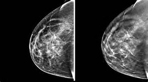picocent breast expansion picture 6
