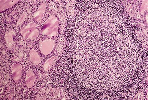 antibodies attacking thyroid picture 5