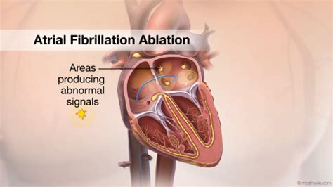 ablation pics picture 9
