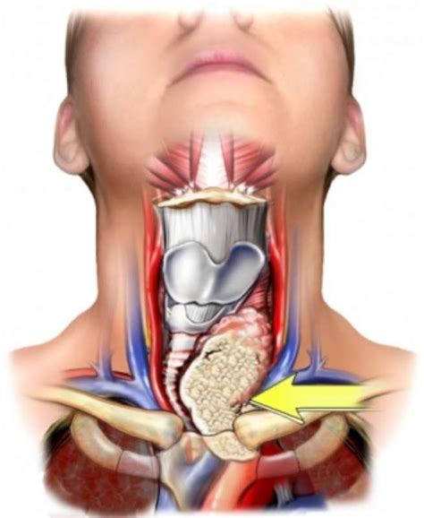 cyst throat thyroid picture 10
