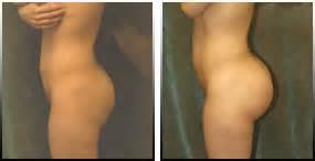 breast augmentation in orlando fl picture 5