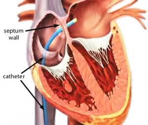 facet joint nerve eblasion picture 11