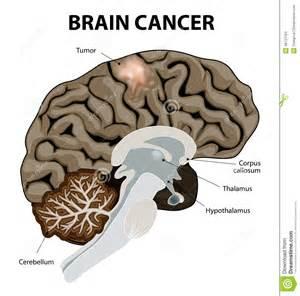 colon cancer brain tumor size of walnut picture 9