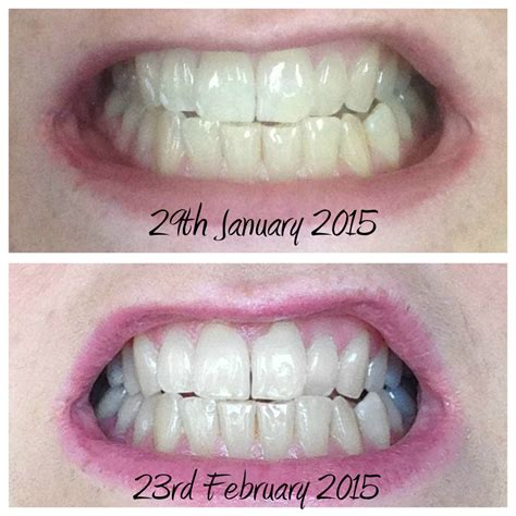 beverly hills tooth whiten picture 17