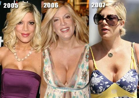 breast enhancement doctor dallas picture 6