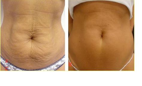 an skin tightening picture 3