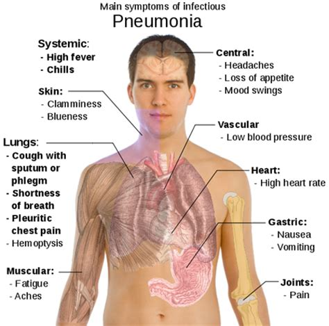 sensitivity and specificity of chest xray in diagnosing bacterial pneumonia picture 20