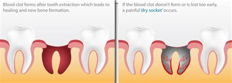 wisdom h dry sockets picture 2