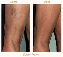 cary laser hair removal picture 13