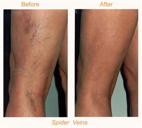 cary laser hair removal picture 3