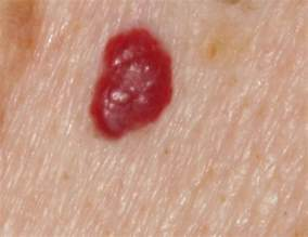 blood spots on skin picture 1