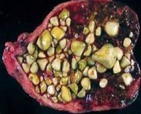 gall bladder stones picture 6