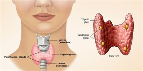 aspiration of a nodule in the thyroid gland picture 1