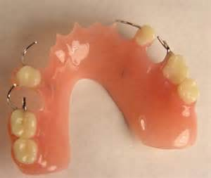 single tooth stay plate picture 6