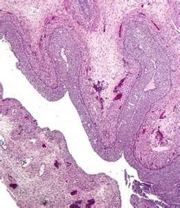 follicular ademoma thyroid picture 19