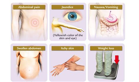 all symptoms of liver cancer picture 3