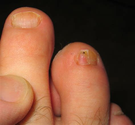 picture of toenail fungus picture 9