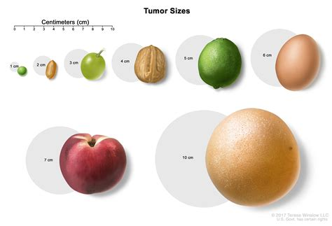 thyroid cancer and nodule size picture 5