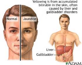 what can cause liver damage picture 3