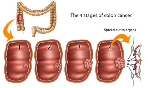 liver and colon cancer picture 13