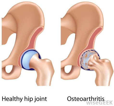 bilateral degenerative joint disease picture 9